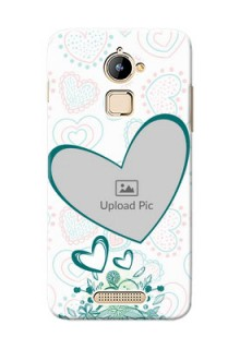Coolpad Note 3 Lite Couples Picture Upload Mobile Case Design